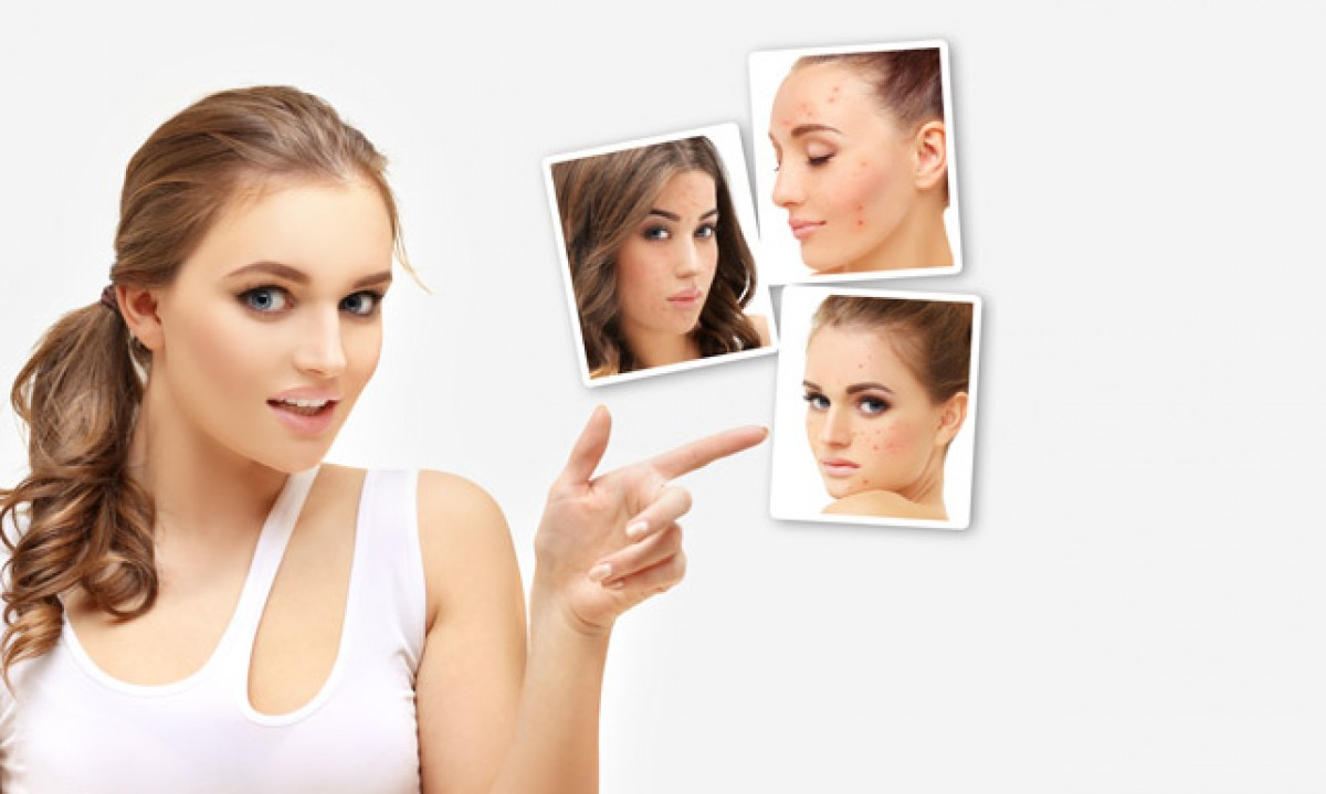 Cuidados diarios para las pieles con tendencia acneica