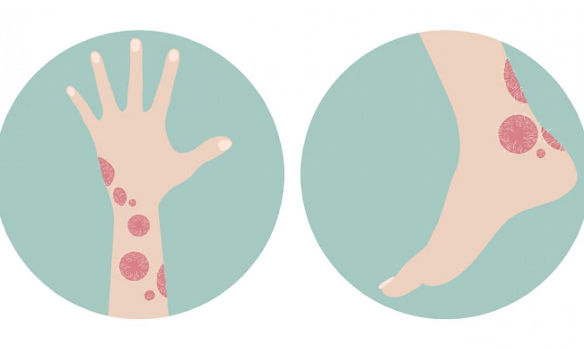Psoriasis, una enfermedad crónica controlada